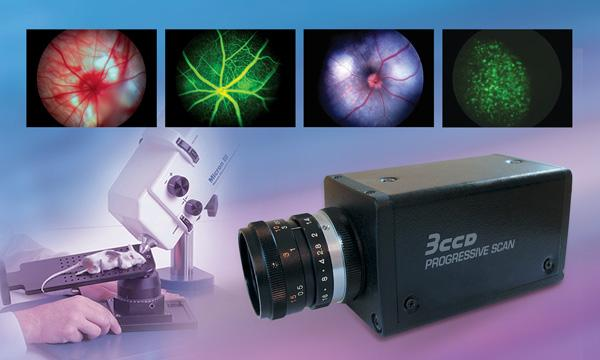 Toshiba Imaging's 3-Chip Color Camera IK-TF7 Integrated into Retinal Imaging Microscopy Software