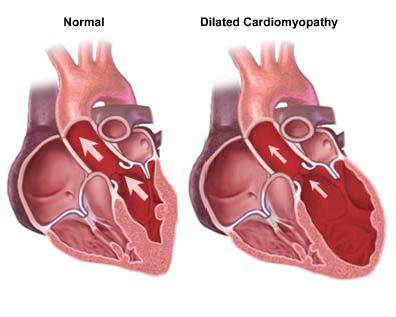 Global Market for Dilated Cardiomyopathy Therapeutics