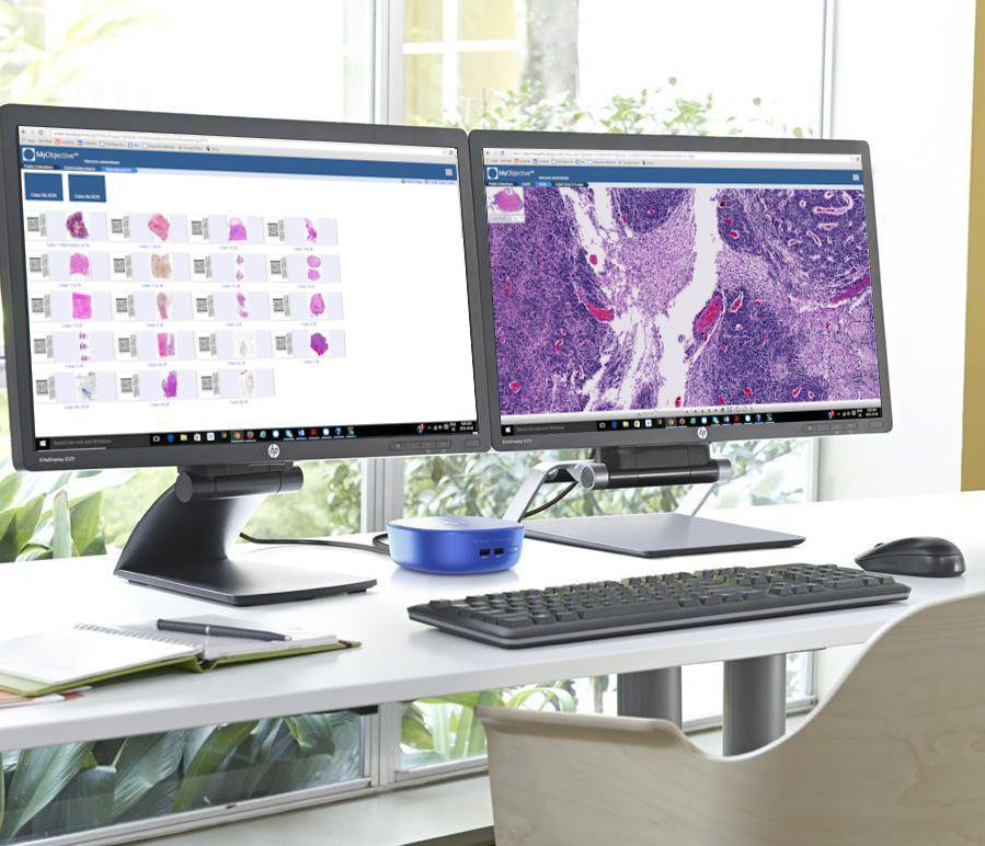 Objective Pathology Brings Affordable Digital Pathology to