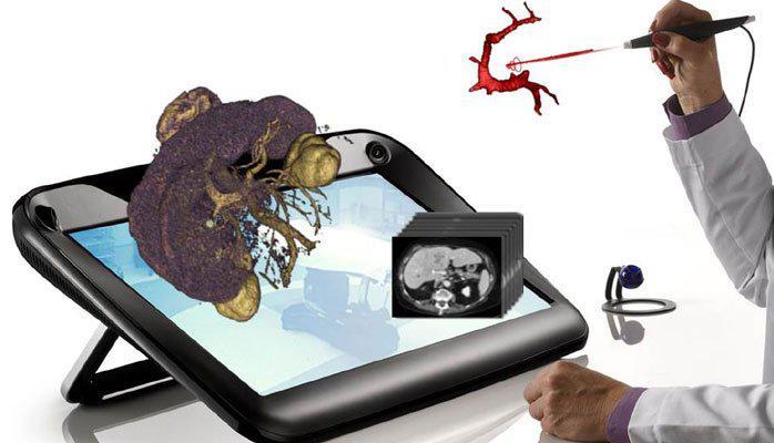 Global 3D Medical Imaging Equipment Market 2016