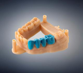 Dental 3D Printer Market Business is Booming. Asia-Pacific