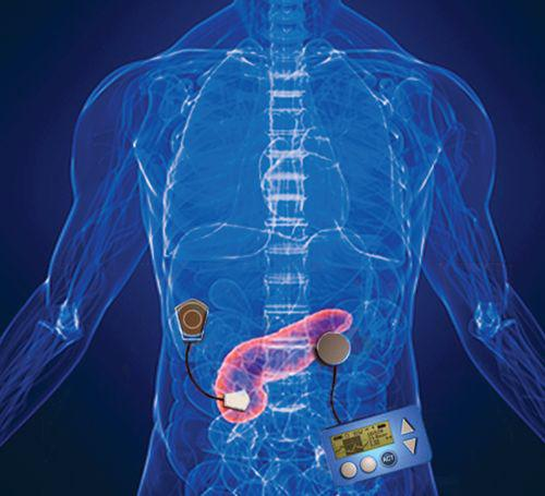 Artificial Pancreas Market, Company Analysis and Forecast