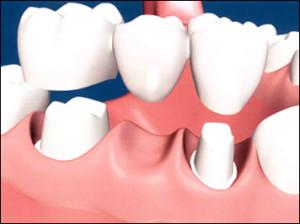 Global Resin Dental Material Market