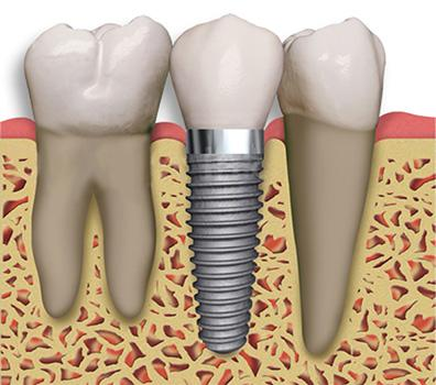 Global Implant Abutment Sales Market 2017 Top Players -