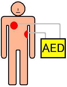 Automated External Defibrillator Market