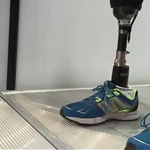 Global Prosthetic Foot Sales Market Report 2017