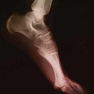 Global Orthopedic Orthotics Market