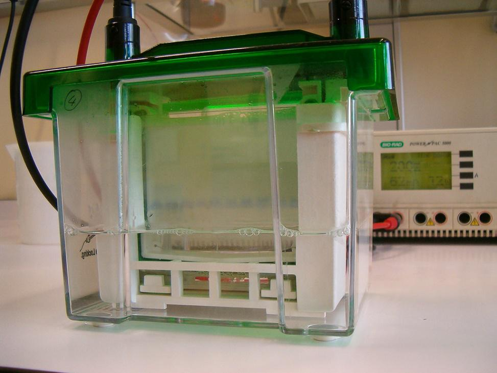 Serum Protein Electrophoresis Market