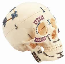 Craniomaxillofacial Implants Market by Type, Size, Share,