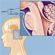 Glioblastoma Multiforme Treatment (GBM)Industry Analysis