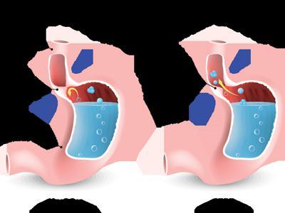 Gastroesophageal Reflux Disease Therapeutics Market