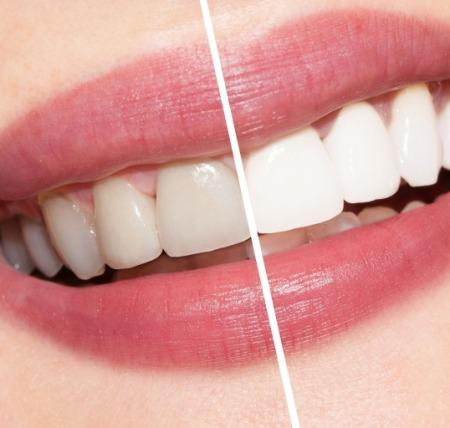 Global Teeth Whitening Products Market 2017 Analysis - P&G,