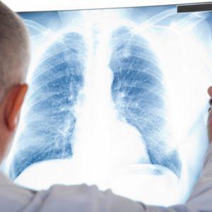 Medical Digital Imaging System Market