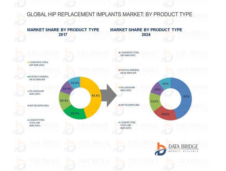 Global HIp Replacements Implants Market