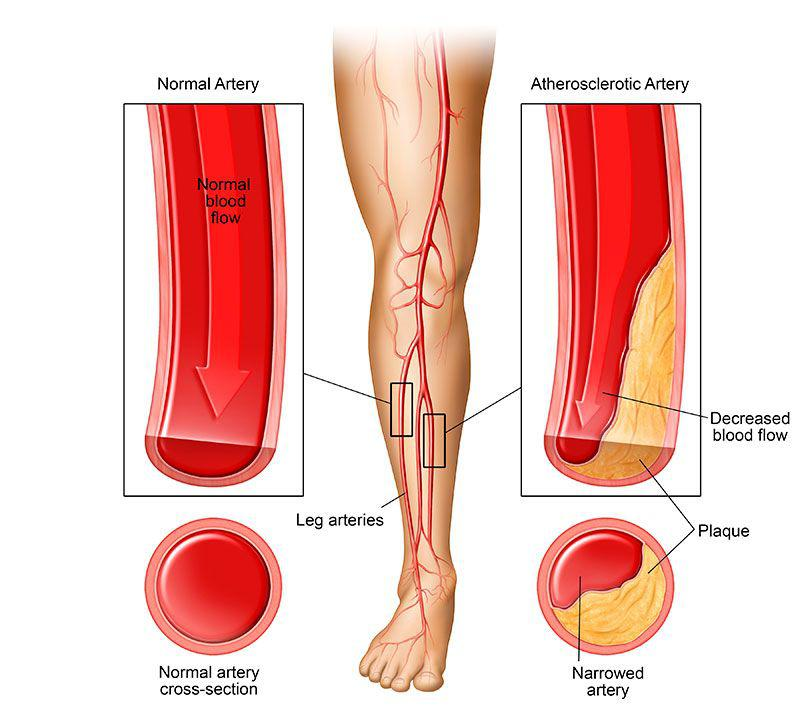 Peripheral Artery Disease Market Report Forecasts Impressive