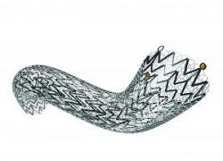 Carotid Stents Market Detailed Study on Size, Status & Leading