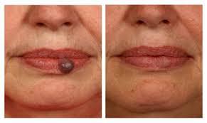 Vascular Lesions Treatment Laser