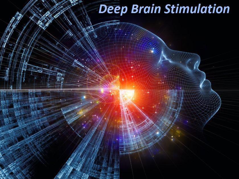Deep Brain Stimulation Devices Market Analysis On the basis