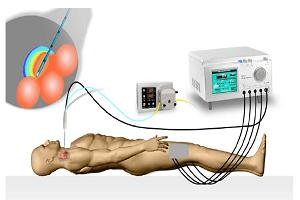 Global Radiofrequency Ablation Devices Market