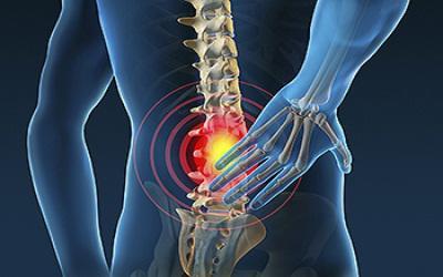 Global Spine Surgery Market