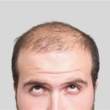 Hair Loss Treatments Products market