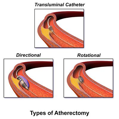 Explore what makes Atherectomy Devices market a booming