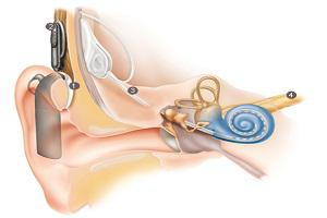 Global Cochlear Implants Market