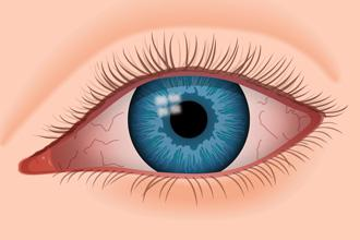 Dry Eye Disease Market Will Witness a Staggering Growth During