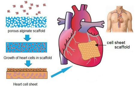 Global Cardiovascular and Soft Tissue Repair Patches Market