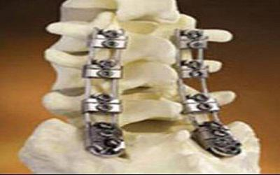 Global Pedicle Screw-Based Dynamic Stabilization Systems Market