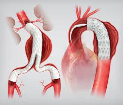 Aortic Stents Grafts Market