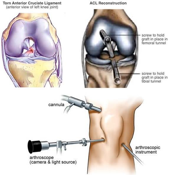 Knee Reconstruction Market