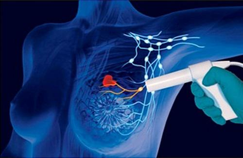 Breast Cancer Therapeutics Market Opportunity Assessment,