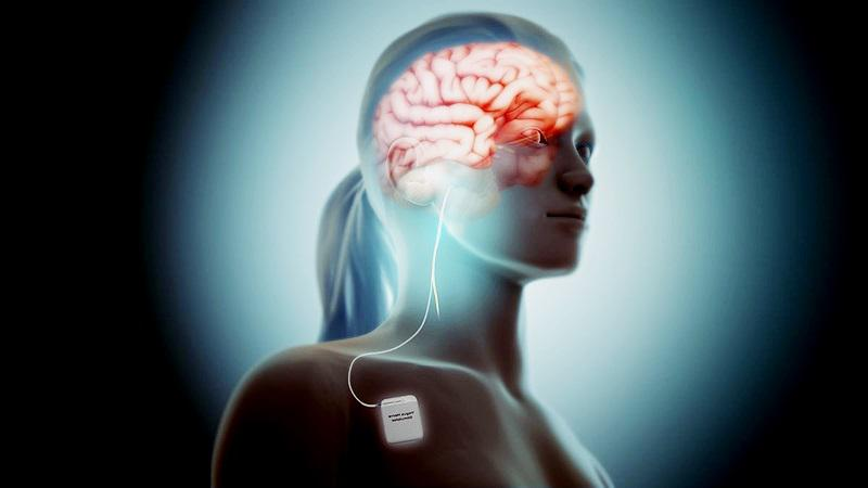 Neurostimulation Devices Market Growth, Opportunities,