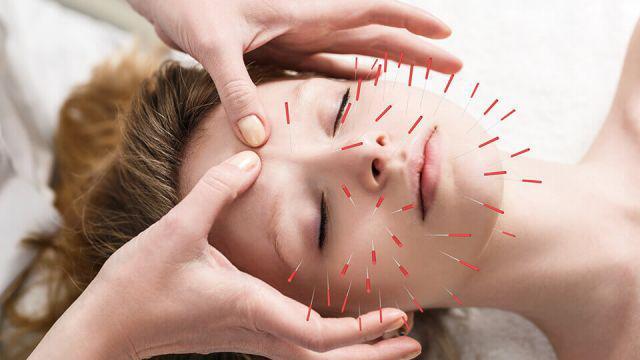 Acupuncture Market