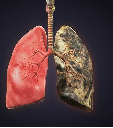 Black Lung Disease Market 2018 | Seems to be on the Rise in USA,