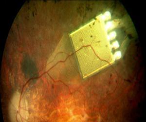Global Retinal Implants Market
