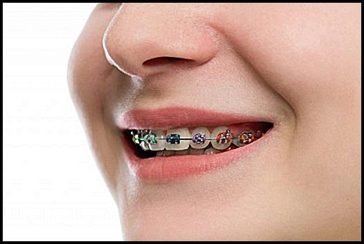 Orthodontic supplies market 2018 : Study on Eminent Players | 3M,