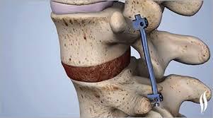 Spinal Surgery Procedures