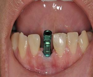 Global Dental Implant Fixtures and Final Abutments Market