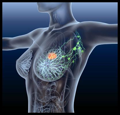 Breast Cancer Therapeutics Market Top Players – AstraZeneca,