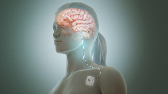 A Comprehensive Research Report On Vagus Nerve Stimulation(VNS) Market 2018 Global Analysis By Key Players