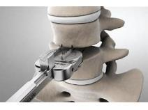 Global Artificial Disc Replacement Industry Research Report, Growth Trends and Competitive Analysis 2018-2025
