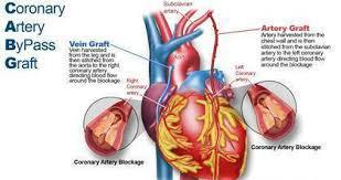 Coronary Artery Bypass Graft Market