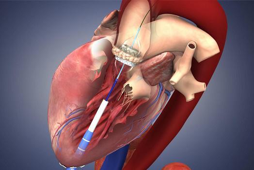 Heart Valve Devices