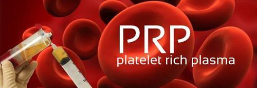 Platelet Rich Plasma (PRP) Market, Platelet Rich Plasma (PRP) Market Analysis, Platelet Rich Plasma (PRP) Market Forecasts, Platel