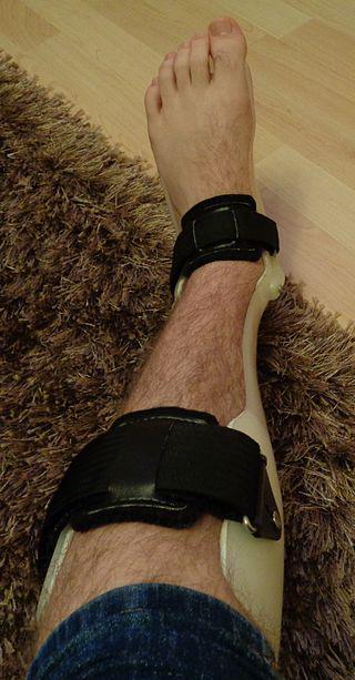 Orthopedic Soft Tissue Repair Devices