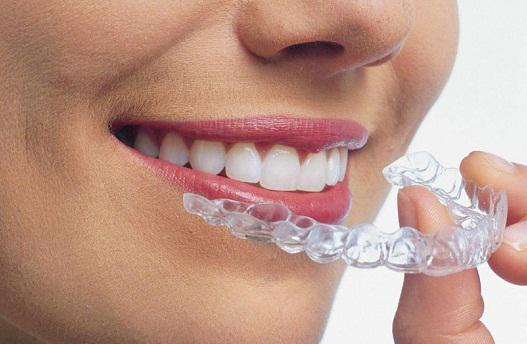 Invisible Orthodontics Market Research | Focusing Top