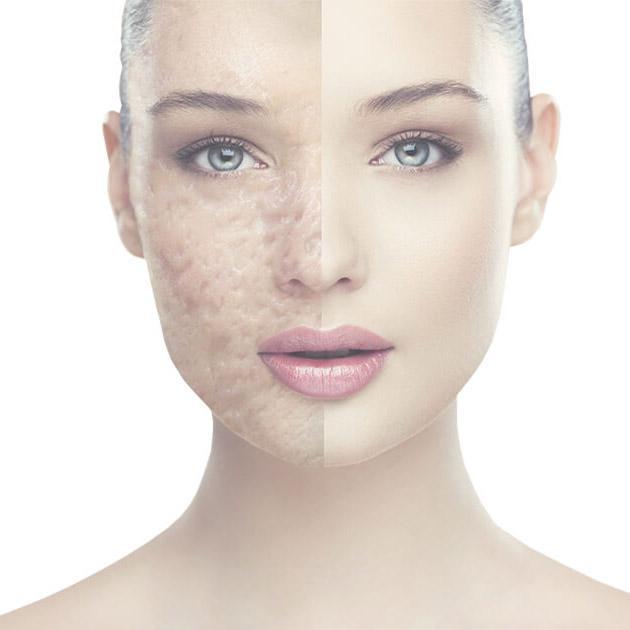 Scar Treatment Market - Keloids and Burned Scars Treatment