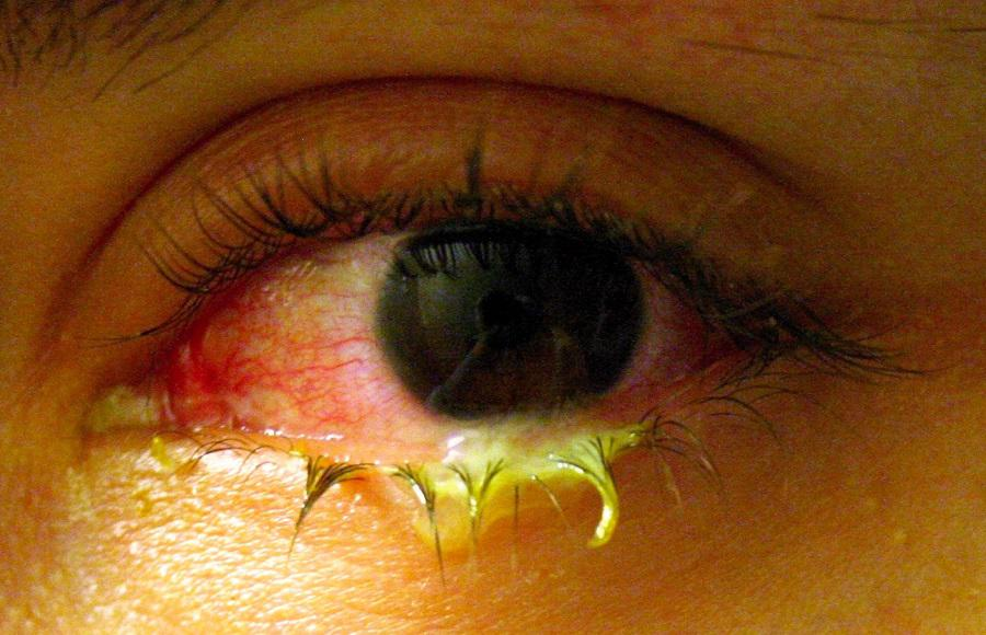 Global Dry Eye Syndrome Treatment Market